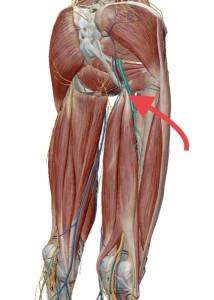 坐骨神経痛 筋肉